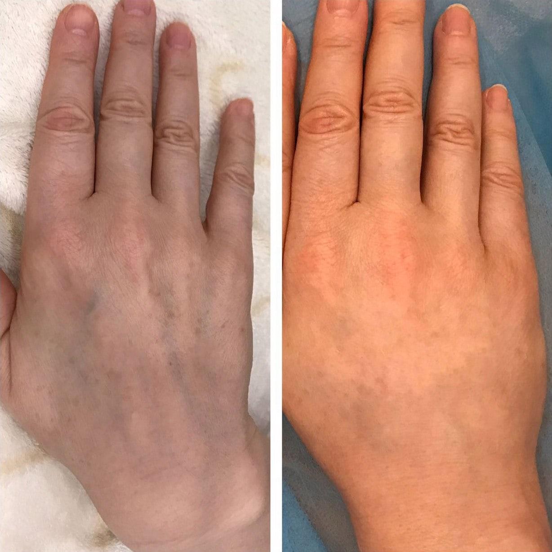 Что Нужно Чтоб Похудели Пальцы На Руках. Как похудеть в толстых пальцах?